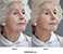 Elderly Before and After Thumbnail